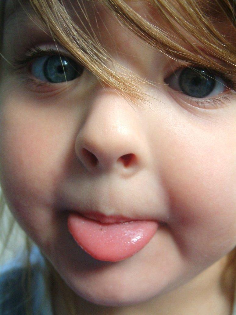 親知らずと舌が原因の口臭
